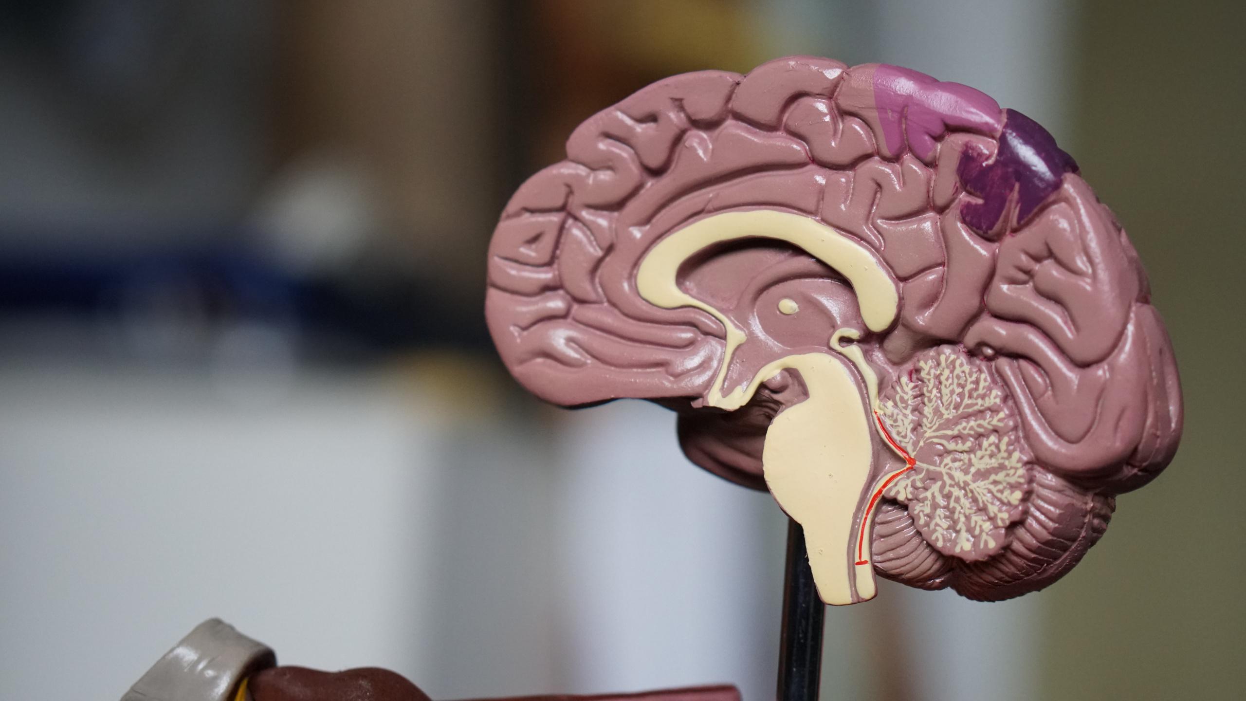 Modell av en hjerne. Illustrasjonsfoto demens.